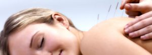 acupuncture-sunshine-coast
