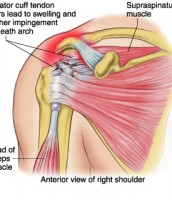 Rotator Cuff Tear -Physio Professionals Caloundra and Kawana