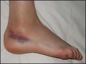 lateral-ankle-sprain-physio