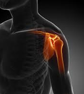 Shoulder Impingement Syndrome