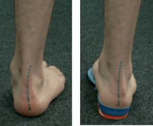 orthotics-for-lower-limb-injuries