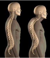How does your thoracic spine affect your neck?