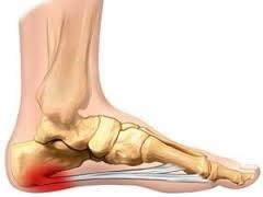plantar-fasciitis-symptoms