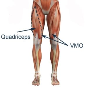 strengthening the quadriceps