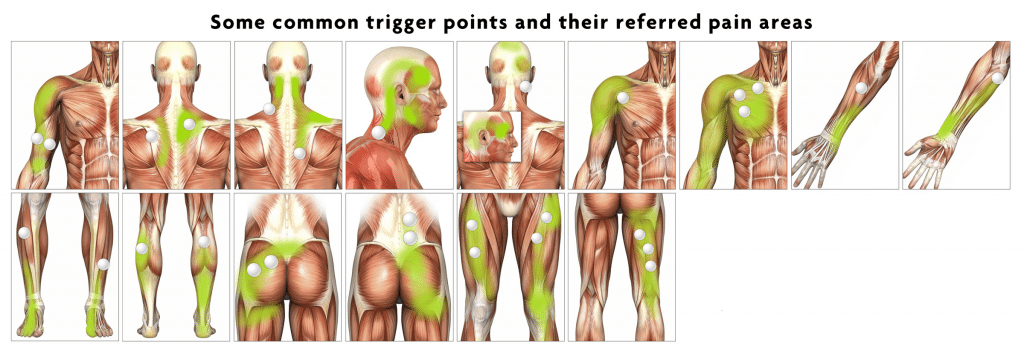 trigger-point-massage