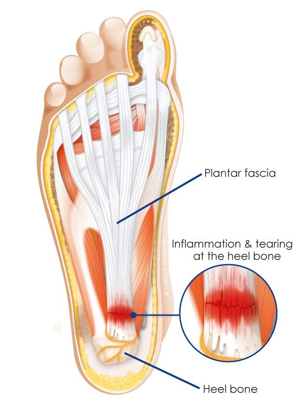 plantar-fasciitis-treatment-sunshine-coast