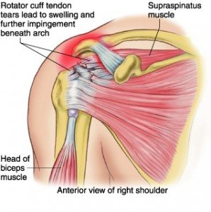 rotator-cuff-tear-treatment