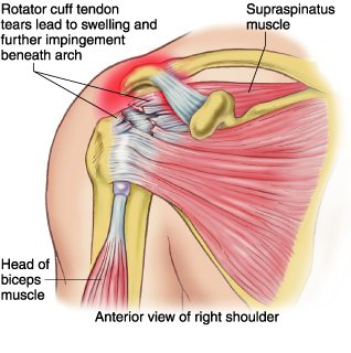 Rotator Cuff Tear Physio Professionals Caloundra And