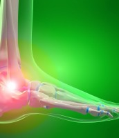 Strengthening Exercises for Lateral Ankle Sprains