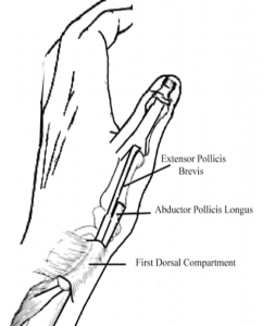 physio-acute-ligament-sprains
