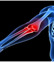 Elbow Pain and Physiotherapy