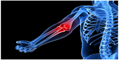 Elbow-physiotherapy-pain