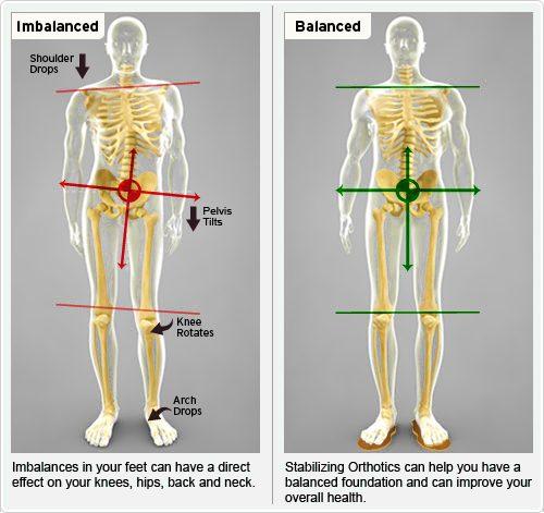 imbalances-lower-limb-biomechanics