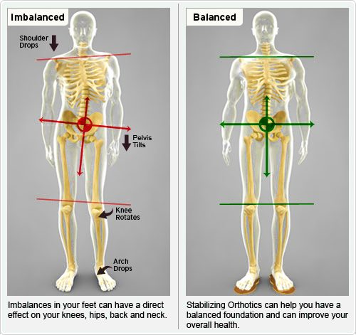 imbalances-lower-limb-biomechanics