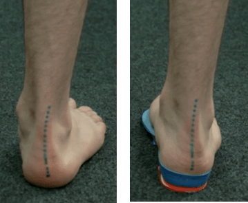 orthotics-for-lower-limb-injuries