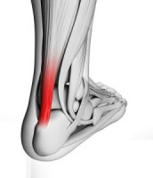 Achilles Tendinopathy and Physiotherapy