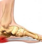 Plantar Fasciitis and Physio Treatment