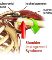 Shoulder Injuries With Ryan West Caloundra and Kawana Physio